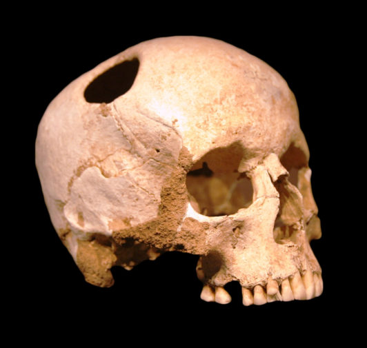 A skull showing a drilled hole from trepanning.