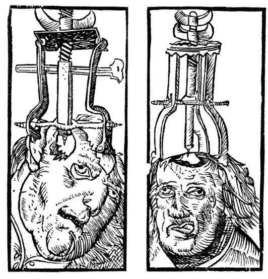 This Renaissance woodcut from 1525 shows instruments being used to repair a depressed skull fracture.