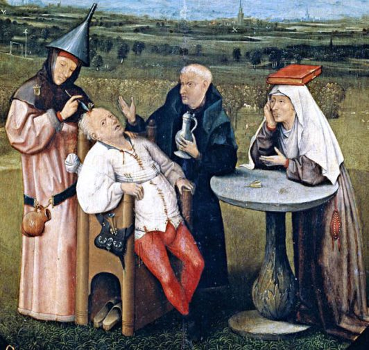 This painting by Hieronymus Bosch and shows a Renaissance surgeon (1450-1516) using trepanning to treat a patient.
